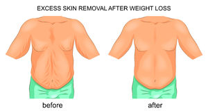 Removal of excess skin after weight loss Royalty Free Stock Photo