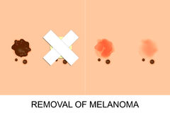 Removal of melanoma Stock Photos