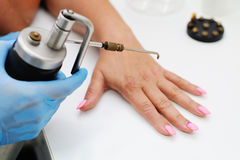 Removal of warts in dermatology clinic royalty free stock images