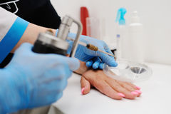 Removal of warts in dermatology clinic Stock Images
