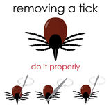Removing a tick. Vector infographic illustration on how to properly remove a tick, and avoid lyme disease Stock Photography