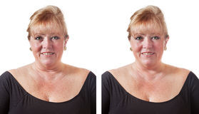 Removing wrinkles Stock Images
