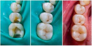Remplissage esthétique supérieur de molaire et de prémolaire photos libres de droits
