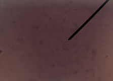Renal epithelial cells fine with microscope. Royalty Free Stock Image