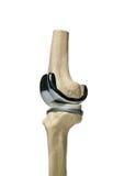 Repacement humano de la rodilla Fotografía de archivo