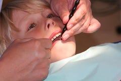 Reparos dentais fotografia de stock