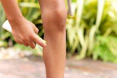 Repelente de insetos de pulverização do menino novo contra mordidas de mosquitos em seus pés no jardim foto de stock