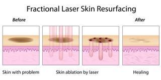 Replanage fractionnaire de peau de laser Photographie stock
