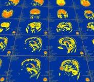 Représentation de résonance magnétique du cerveau Image stock