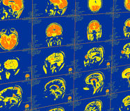 Représentation de résonance magnétique du cerveau Photographie stock