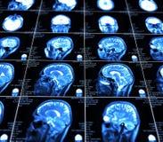 Représentation de résonance magnétique du cerveau Photo libre de droits