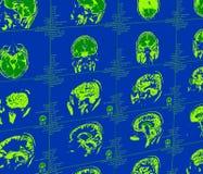 Représentation de résonance magnétique du cerveau Photographie stock libre de droits