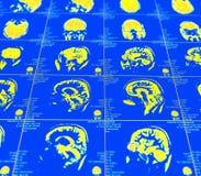 Représentation de résonance magnétique du cerveau Images stock