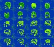 Représentation de résonance magnétique du cerveau Photos stock