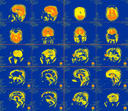 Représentation de résonance magnétique du cerveau Photos libres de droits