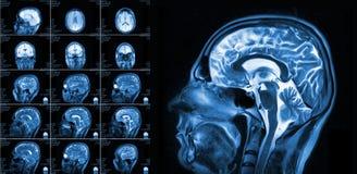 Représentation de résonance magnétique du cerveau Photo stock