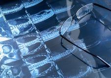 Représentation de résonance magnétique et verres Photographie stock libre de droits