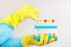 Researcher hands in rubber gloves is conducting chemical experiments in laboratory. Researcher hands in rubber gloves is conducting chemical experiments in the Stock Photos