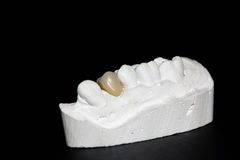 Resin tooth Royalty Free Stock Photos