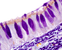 Respiratory epithelium. Goblet cells royalty free stock images