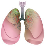 Respiratory system smoker. Lung cancer Royalty Free Stock Photo