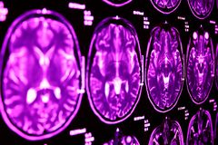 Ressonância magnética do cérebro, azul Fotos de Stock Royalty Free