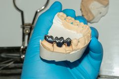 Restauração dental de raizes podres dos dentes com coroas cerâmicas odontologia moldada dos cargos imagens de stock