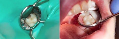 Restauração do close-up do dente O conceito do trea estético fotografia de stock royalty free