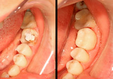 Restauração dos dentes Imagens de Stock