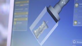 restauración de modelado digital dental 3D modelo 3d de los dientes, dientes explorados del paciente El doctor es el estudiar almacen de metraje de vídeo