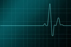 resulation cardiogram высокое Стоковое Фото