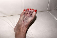Result of Morton's neuroma surgery on a woman's foot Royalty Free Stock Photo