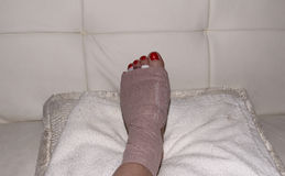 Result of Morton's neuroma surgery on a woman's foot Stock Photography
