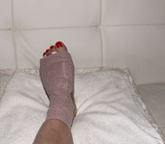 Result of Morton's neuroma surgery on a woman's foot Royalty Free Stock Image