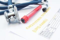 Resultado da análise do painel do lipido do teste do colesterol, tubos de ensaio com sangue e mentiras médicas de um estetoscópio imagens de stock royalty free