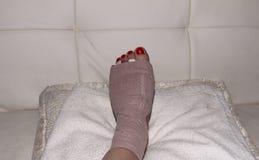 Resultado da cirurgia do neuroma de Morton no pé de uma mulher Fotografia de Stock