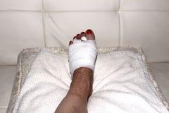 Resultado da cirurgia do neuroma de Morton no pé de uma mulher Foto de Stock Royalty Free