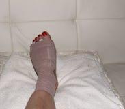 Resultado da cirurgia do neuroma de Morton no pé de uma mulher Imagem de Stock Royalty Free