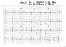 Resultado de EKG o de ECG de una prueba de tensión de la rueda de ardilla Fotografía de archivo