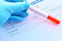 Resultado do laboratório do teste da vitamina B12 imagens de stock