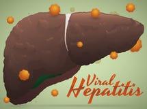 Resultado enfermo del hígado de la hepatitis viral con el virus alrededor de él, ejemplo del vector libre illustration
