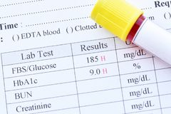 Resultados da análise do diabetes fotografia de stock