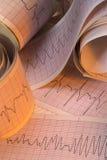 Resultados da análise do eletrocardiógrafo - arritmia cardíaca Fotografia de Stock