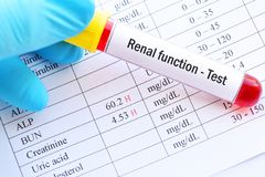 Resultados da análise renais altos anormais da função imagens de stock