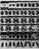 Resultados de exploración del Mrt o tiro de la radiografía, tecnología médica y huevas imagen de archivo libre de regalías