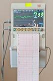Resultados do pulso do coração de Ekg do teste do Cardiogram fotografia de stock