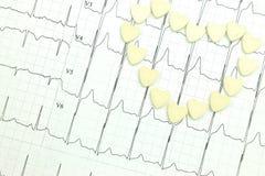 Resultaten av elektrokardiografi Arkivfoto