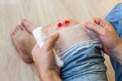 Resultatet av nedgången - det skadade knäet arkivbilder