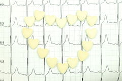 The results of electrocardiography Stock Image