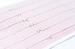 ECG with single ventricular complexes and and ventricular asystole Royalty Free Stock Images